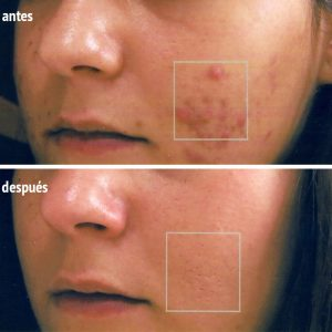 acné en mejillas