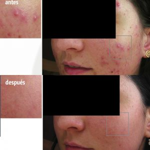 acné en adolescentes