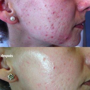 cara con acné