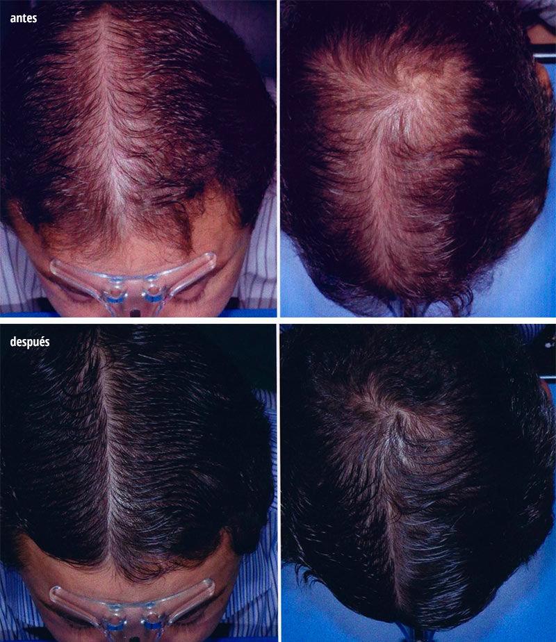 tratamiento alopecia femenina intensivo