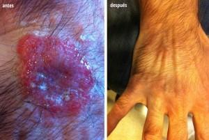 Antes y después Piodermitis