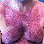 dermatitis4
