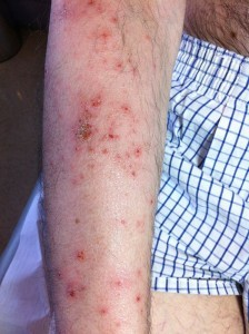 ejemplo de dermatitis atópica