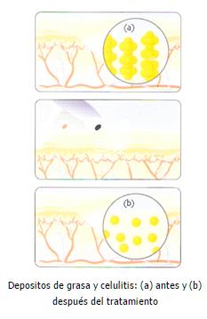 grafic-celulitis