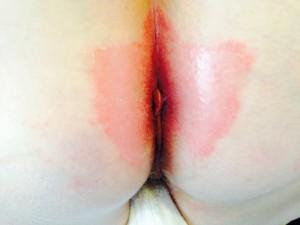 Hongos: tratamiento dermatólogo