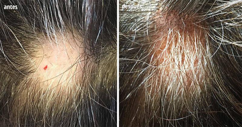 tratamiento caída cabello