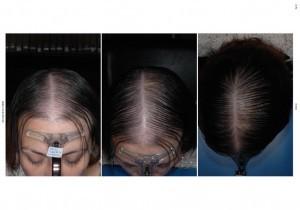tratamiento alopecia a los 14 meses