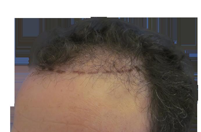 Transplante capilar (Técnica FUE)