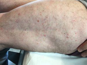 artrosis psoriasica tratamiento