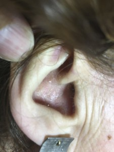 tratamiento dermatitis orejas