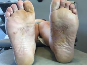 dishidrosis tratamiento por especialista dermatólogo