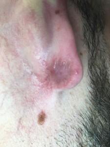 keloide después tratamiento