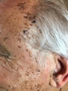tratamiento manchas piel