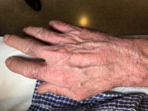 inflamación manos