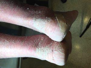 inflamación piernas