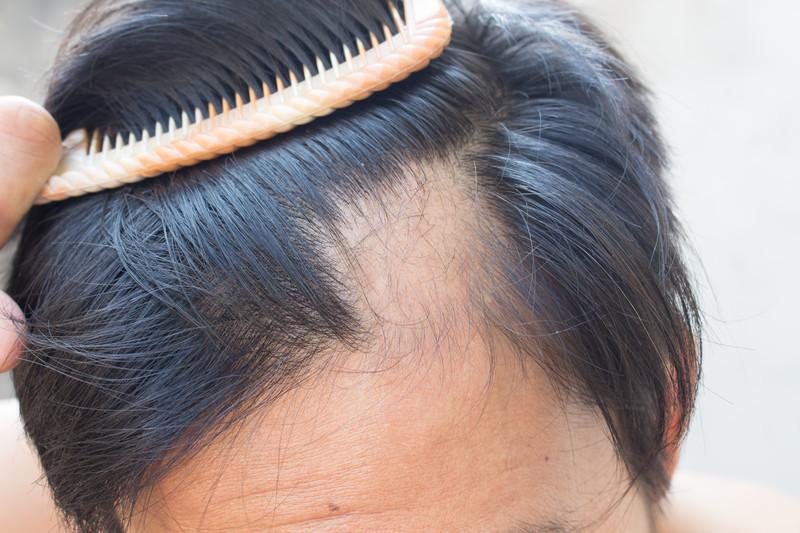 Tratamiento caida pelo