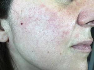 paciente acné (tratamiento por especialistas)