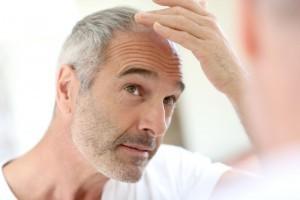trasplante-cabello