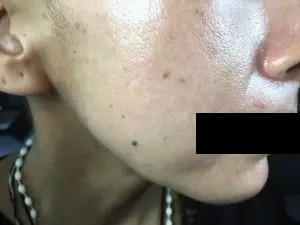 tratamiento manchas cara