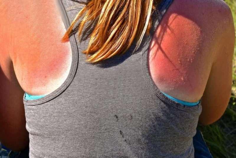 piel quemada sol