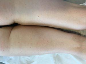 Tratamiento psoriasis Barcelona Dr. Umbert