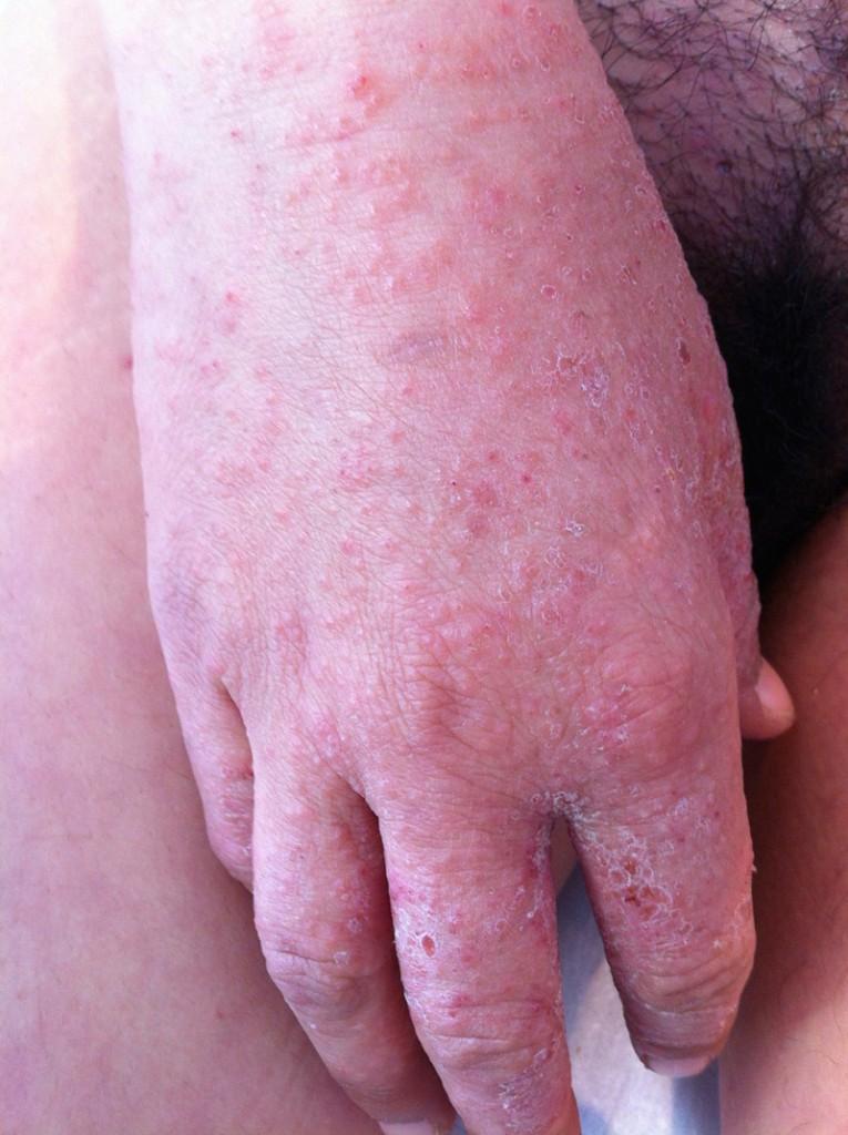 La psoriasis en el vientre y sobre la espalda